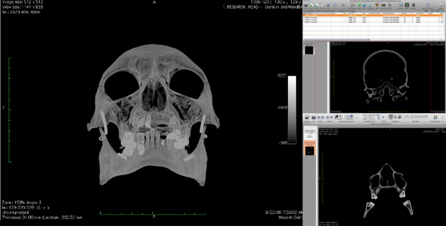 Hyrtl Simulacrum: CT scans and DICOM data