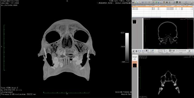 Hyrtl Simulacrum: CT scans and DICOM data